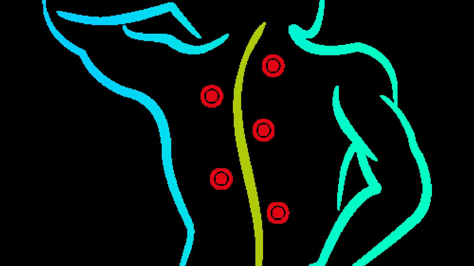 andreas-naumann-naturheilpraxis-naturheilpraktiker-ruesselsheim-koenigstaedten-triggerpunkt-behandlung
